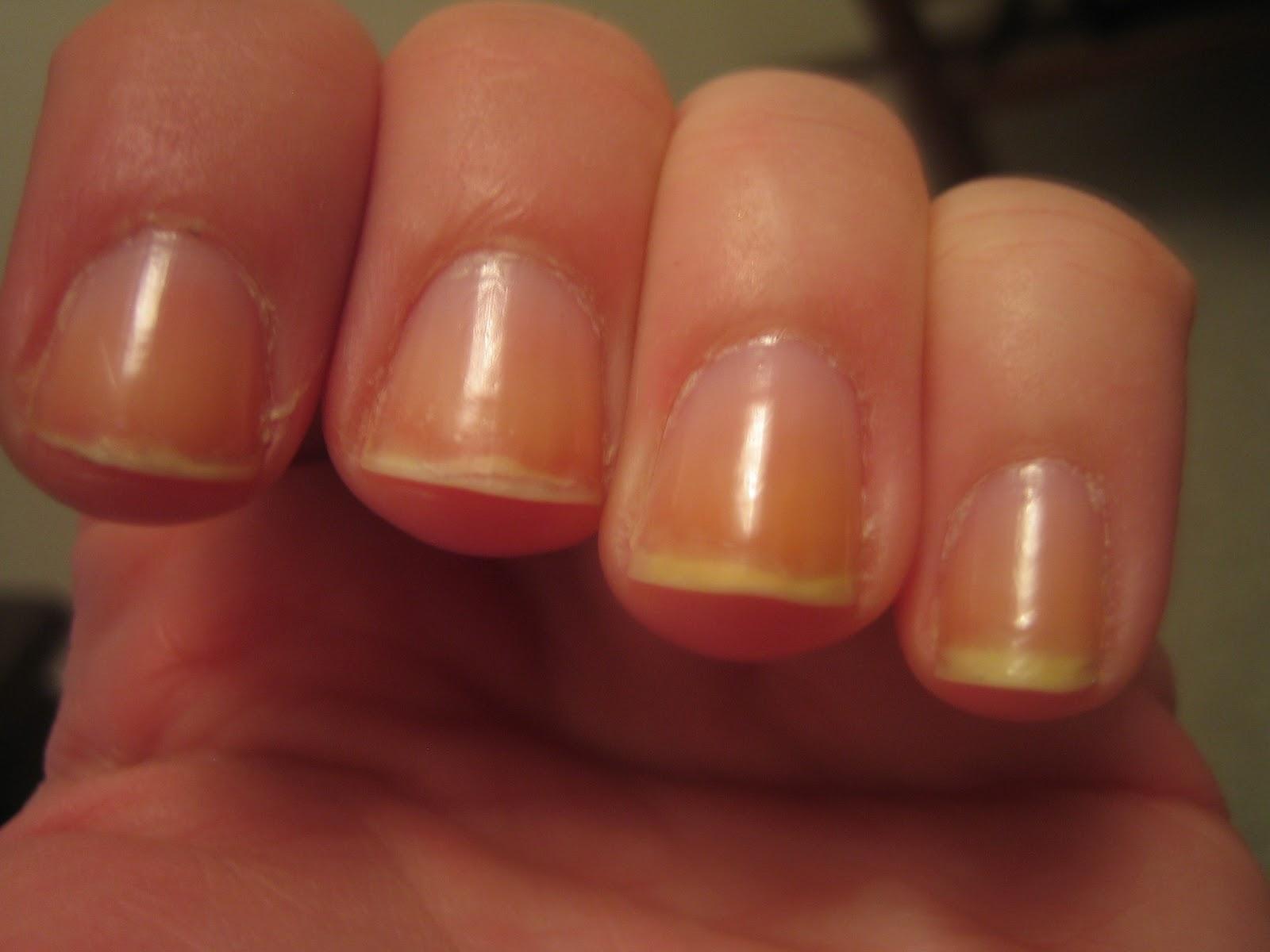 Alikat789 Nail art: My little unpolished broken nails