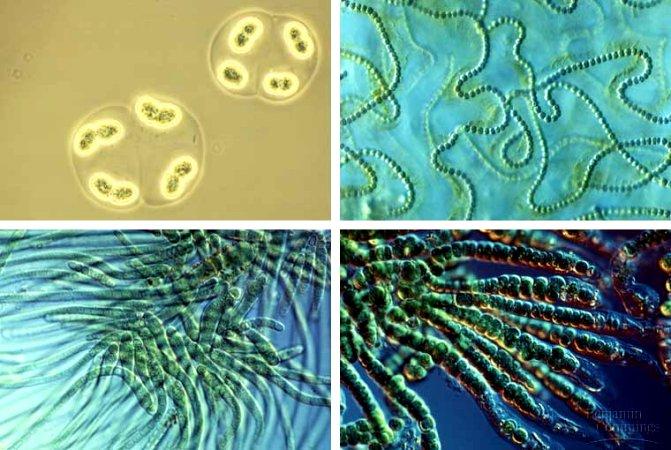 http://4.bp.blogspot.com/_DzHETx-YgFA/TO_Xx6cLoyI/AAAAAAAAAgg/u1TxTw-XALI/s1600/I11-30-cyanobacteria.jpg