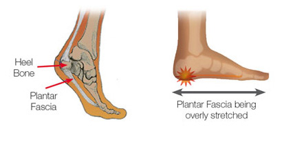 Walking Shoes For Plantar Fascia And Falling Arch