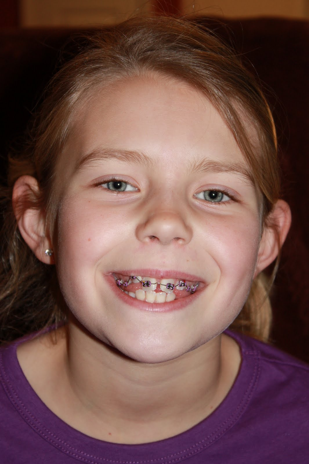 how to smile with braces for picture day
