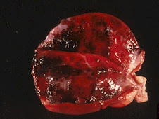 Cistitis hemorrágica (FUS)