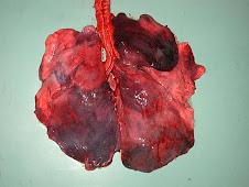 Infarto en pulmón