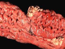 Paratuberculosis