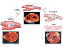 Adapatación o lesión celular