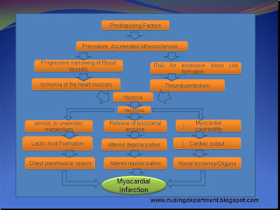 Myocardial infarction essay