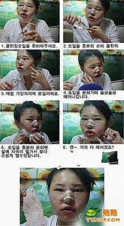 operasi plastik korea
