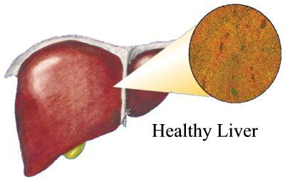 Advanced Liver Cancer Symptoms