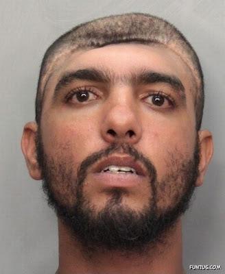 Man With Half Head