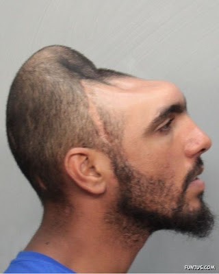 Man With Half Head