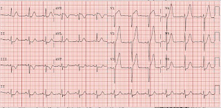 Hyperacute T waves  sc 1 st  Dr. Smithu0027s ECG Blog & Dr. Smithu0027s ECG Blog: Hyperacute T waves
