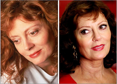 Susan Sarandon before and after pictures (image hosted by knifestyles.blogspot.com)