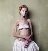 viernes, 30 de marzo de 2007 anorexia
