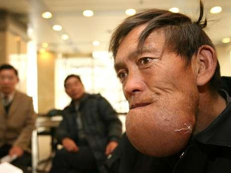 Chang Du has the biggest chin in world