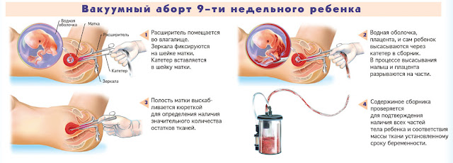 Как сделать аборт на 1 неделе