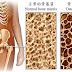 骨质疏松osteoporosis (osteopenia)- drink more milk?