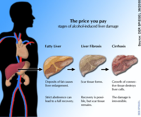 The liver is always affected in chronic alcohol abuse the consequences