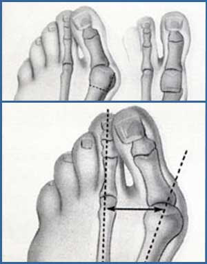 Bunion surgery Procedure photos & recovery tips