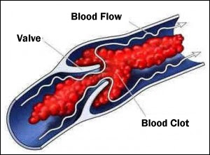 How to Stop Blood Clots?