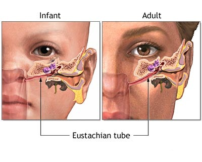Cure causes for blocked ears sweet additions cure causes for blocked ears ccuart Images