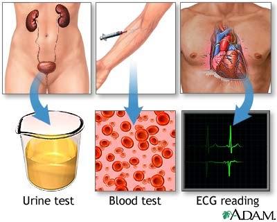 Viagra Blood Tests