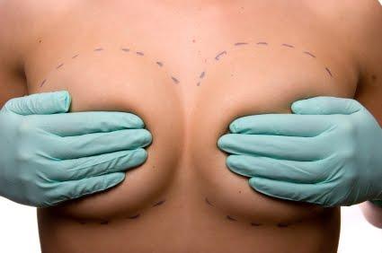Aumentar el busto con mamoplastia