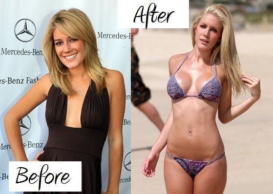 heidi montag surgery before after. Heidi+montag+efore+after+