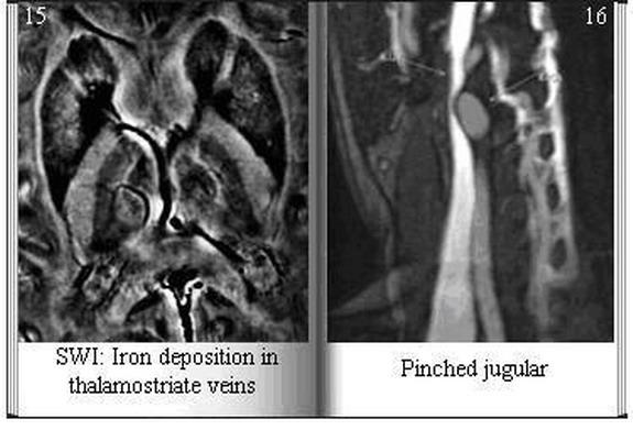 SWI: Iron deposition in thalamostriate veins