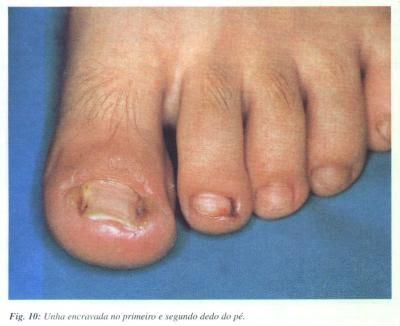Unguento de tratamento de fungo de pé