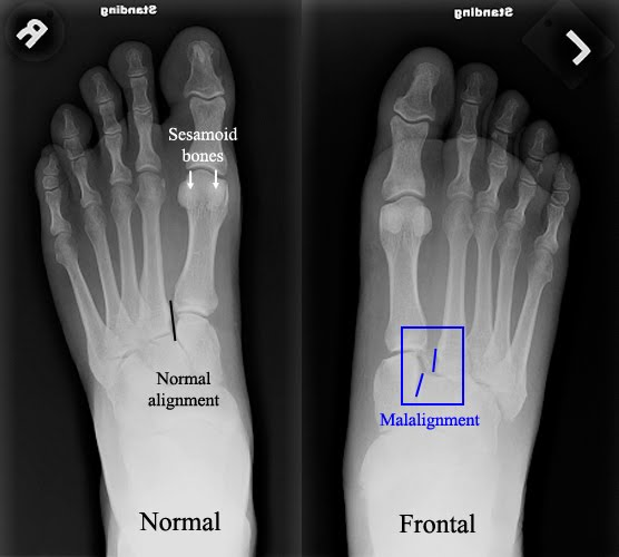patient demonstrates the medial cortical margin of the 2nd metatarsal -4.bp.blogspot.com