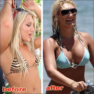 breast augmentation nj