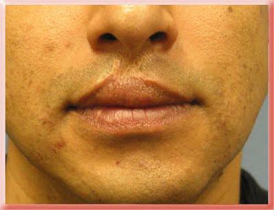 skin loss deficit lip scar