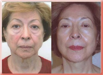before and after lower blepharoplasty