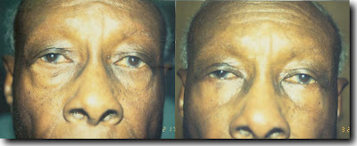 Deeper tear trough after lower eyelid blepharoplasty with fat removal