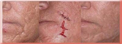 acne scar surgery