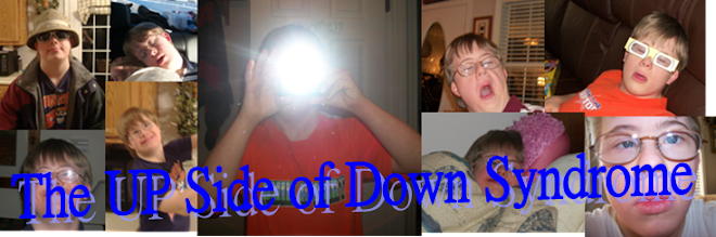 The Up Side of Down Syndrome