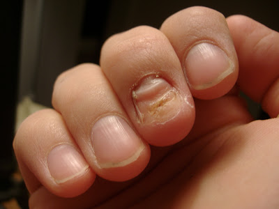 Finally The Nail Fell Off And Now It Looks Like This People Always Ask Me What Hened I M Tempted To Tell Them That Flipped Someone Smote
