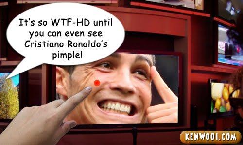 cristiano ronaldo pimple