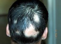 Chute de cheveux de typde pelade