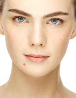 Woman Acne