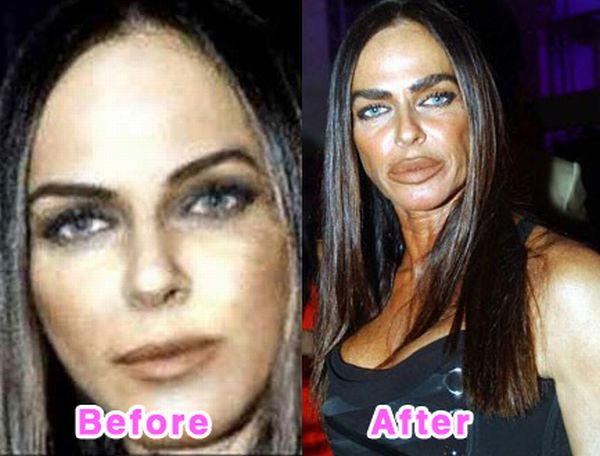 Fresh Pics: 16 Worst Celebrity Plastic Surgery Disasters
