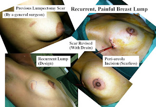 Radiation after cancer removed from breast