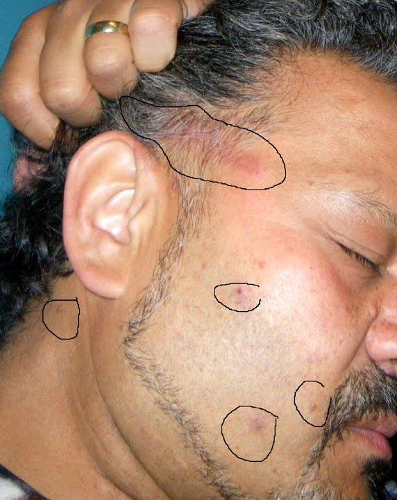 henna hair dye allergic reaction makedes