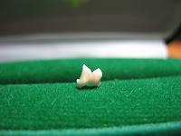 Випав зубчик…