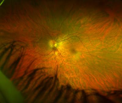 Retinal eye scan image