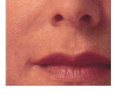Injeções de colágeno de bovino para Preenchimento facial