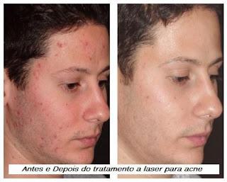 acne2 440x353 Tratamento a Laser para Cicatrizes