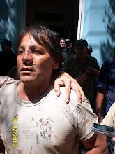Damnificado por represión en Andalgalá
