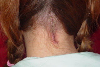 Chiari Malformation surgery scar