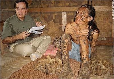 7 Penyakit Menghebohkan Di Indonesia