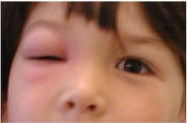 Göz şişmesi nasıl geçer